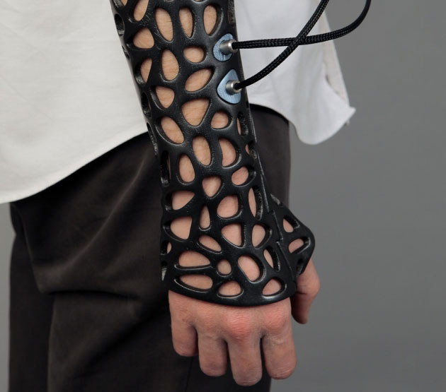 3D printed cast is customized for each patient, fits the limb perfectly using 3d scanner, washable, lighter, ultrasound makes healing process 40% faster.